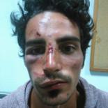 Agredido el hijo de un concejal de Podemos después de denunciar un caso de corrupción en Fuerteventura