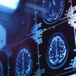 Un estudio detecta por primera vez cambios cerebrales en personas sanas con riesgo de sufrir Alzhéimer
